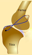 Placement of Monofilament Suture (Leader Line) in Extracapsular Repair